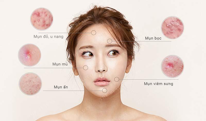 The beauty clinic spa trị mụn hàng đầu Đà Nẵng