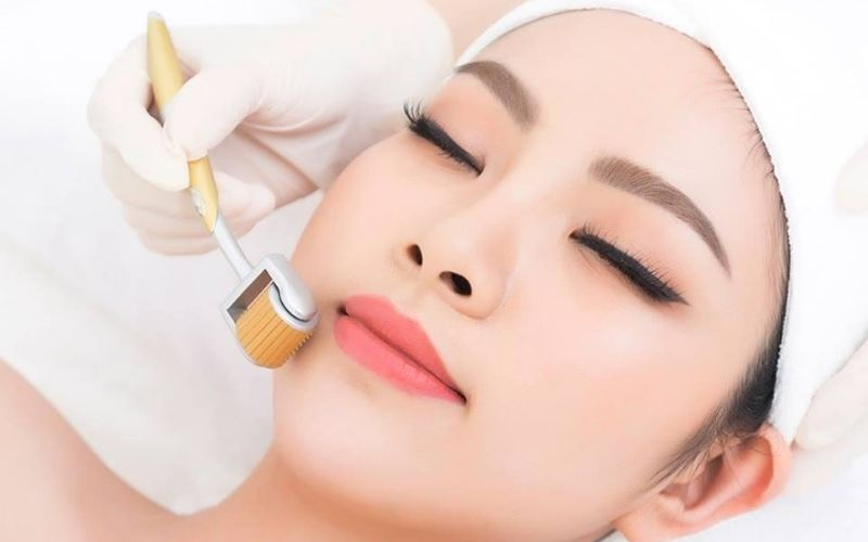 Phương pháp lăn kim khắc phục nhanh chóng da mặt bị rỗ