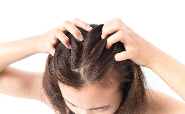 Chọn dầu gội cho da đầu bị khô