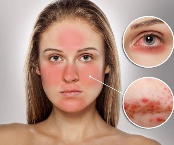 Không nên Peel da khi da mặt đang bị đỏ, da bị dị ứng và có vết thương hở