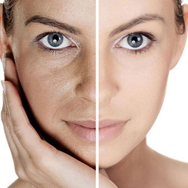 Làn da nào cần được tái tạo